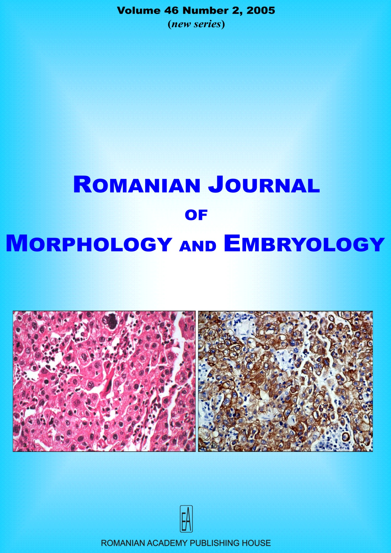 Romanian Journal of Morphology and Embryology, vol. 46 no. 2, 2005