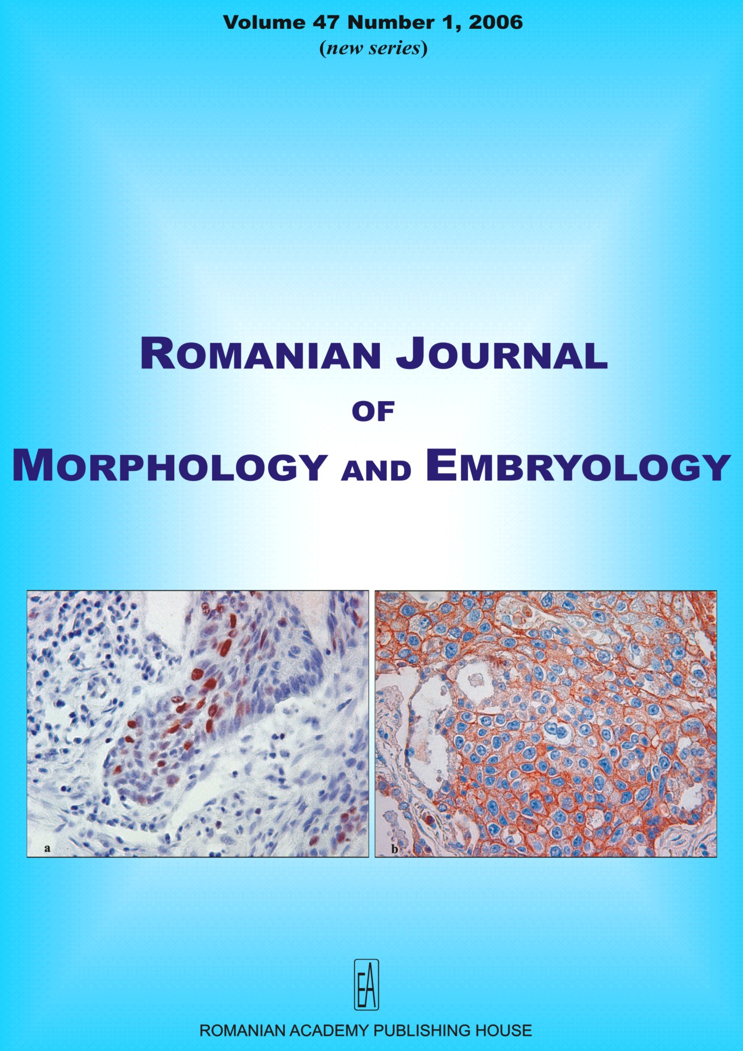 Romanian Journal of Morphology and Embryology, vol. 47 no. 1, 2006
