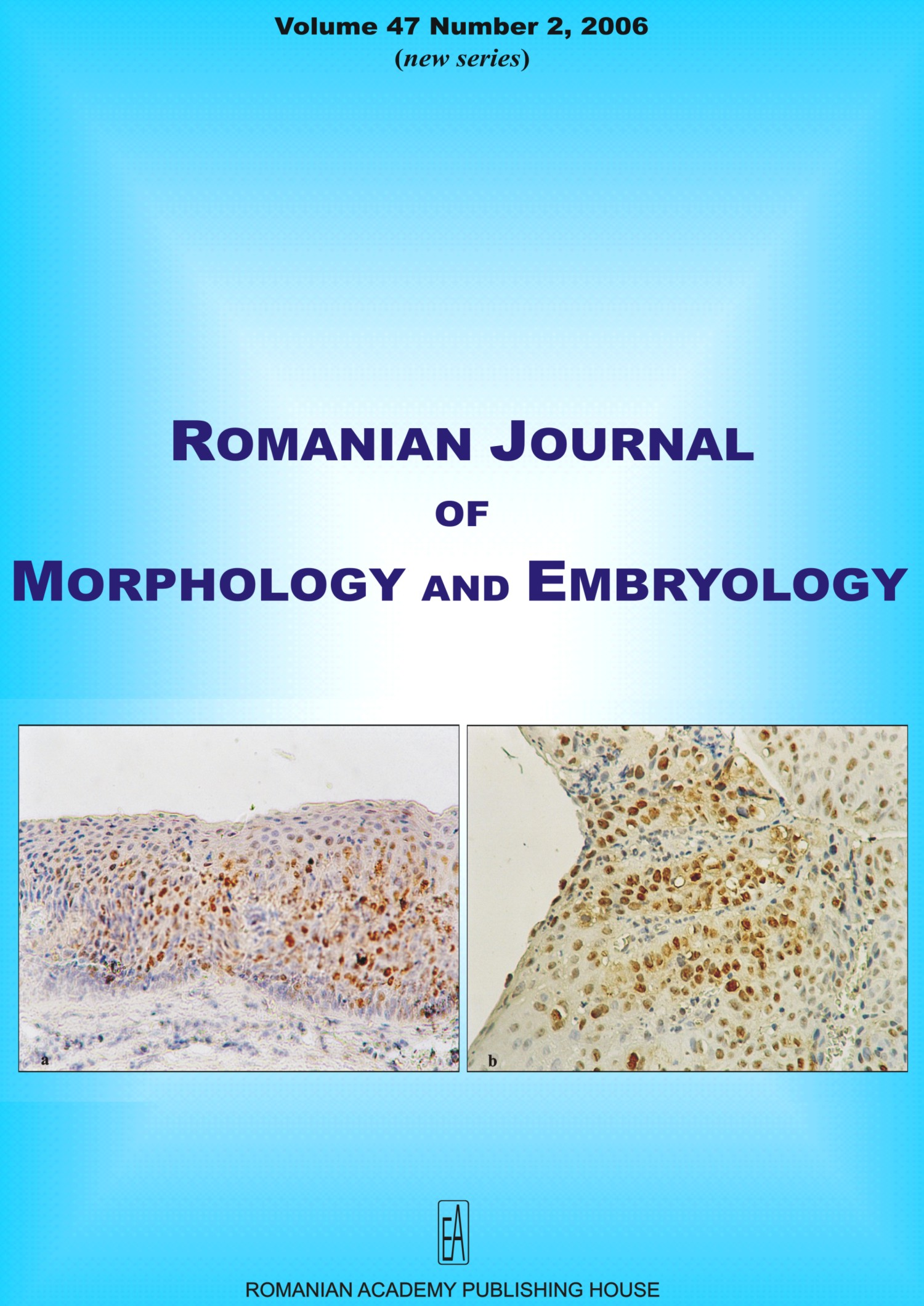 Romanian Journal of Morphology and Embryology, vol. 47 no. 2, 2006