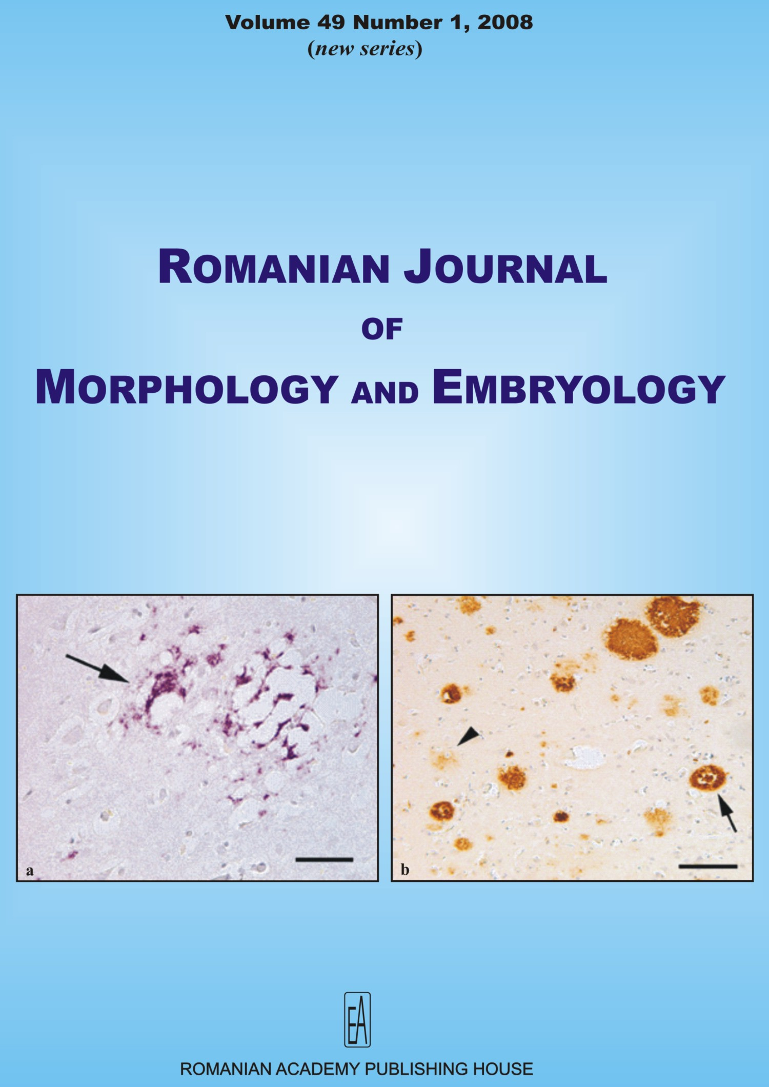 Romanian Journal of Morphology and Embryology, vol. 49 no. 1, 2008