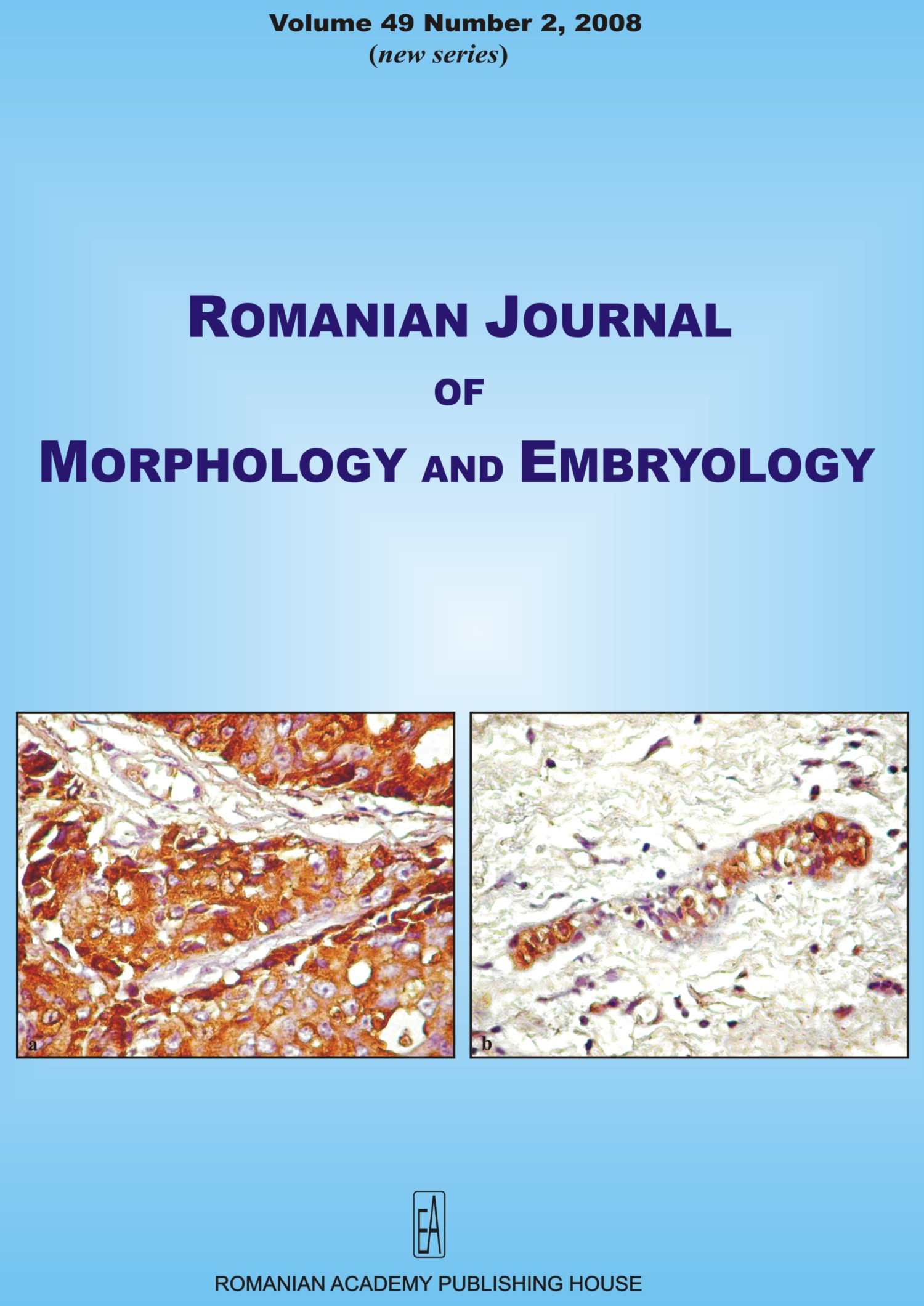 Romanian Journal of Morphology and Embryology, vol. 49 no. 2, 2008