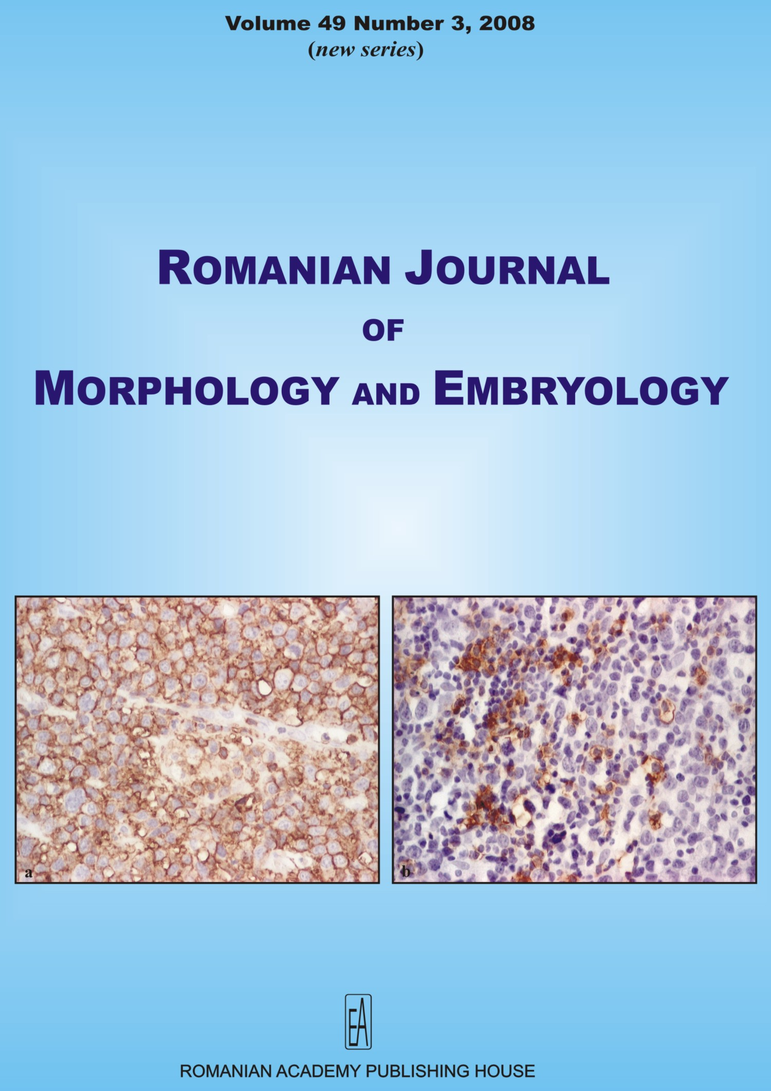 Romanian Journal of Morphology and Embryology, vol. 49 no. 3, 2008