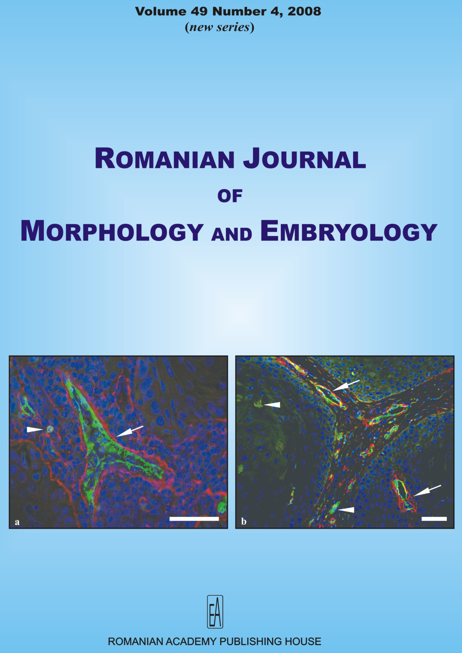 Romanian Journal of Morphology and Embryology, vol. 49 no. 4, 2008