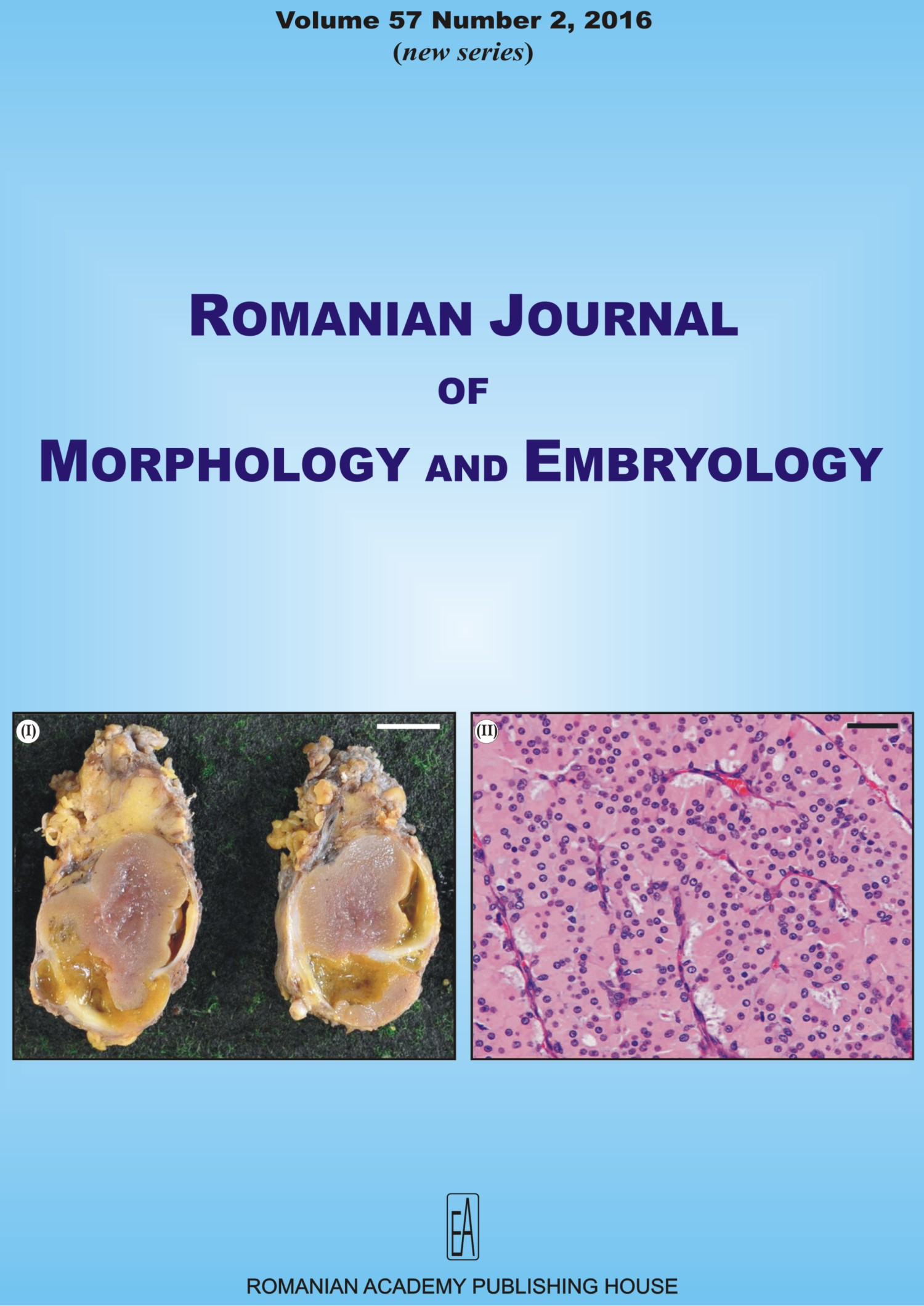 Romanian Journal of Morphology and Embryology, vol. 57 no. 2, 2016
